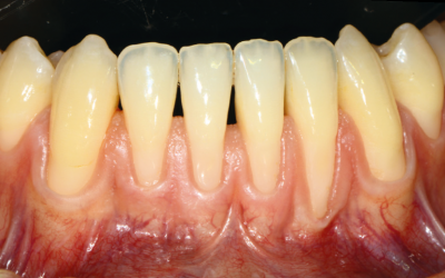 Hyaluronic acid in mucogingival and periodontal surgery