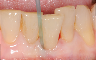 Nonsurgical option to adress periodontal and peri-implant disease